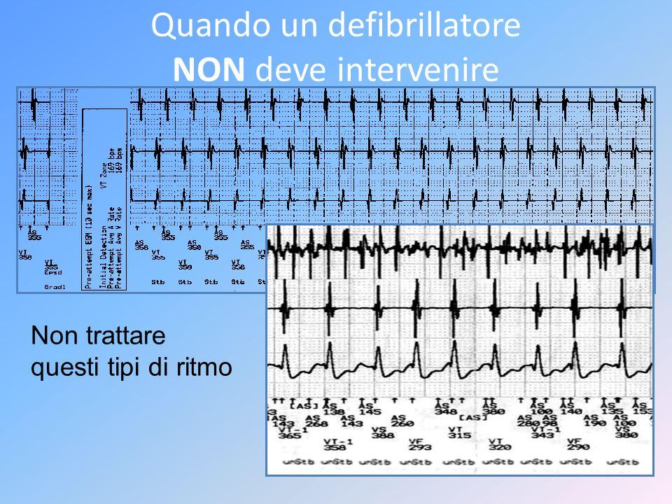 Quando un defibrillatore NON deve intervenire Non trattare questi tipi di ritmo