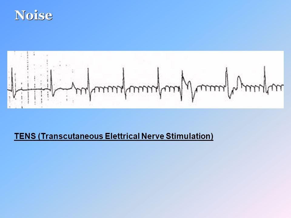 TENS (Transcutaneous Elettrical Nerve Stimulation) Noise