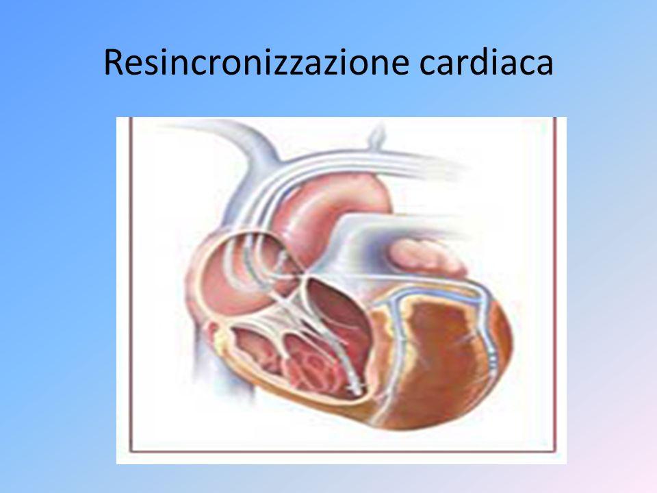 Resincronizzazione cardiaca