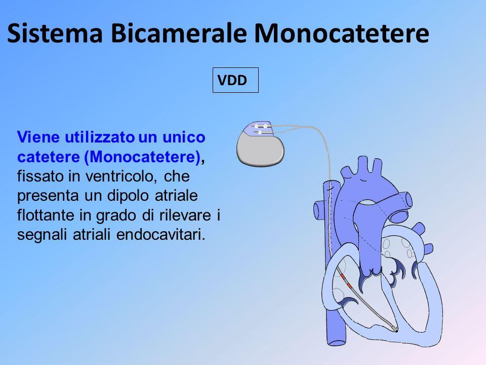 Sistema Bicamerale Monocatetere Viene utilizzato un unico catetere (Monocatetere), fissato in ventricolo, che presenta un dipolo atriale flottante in
