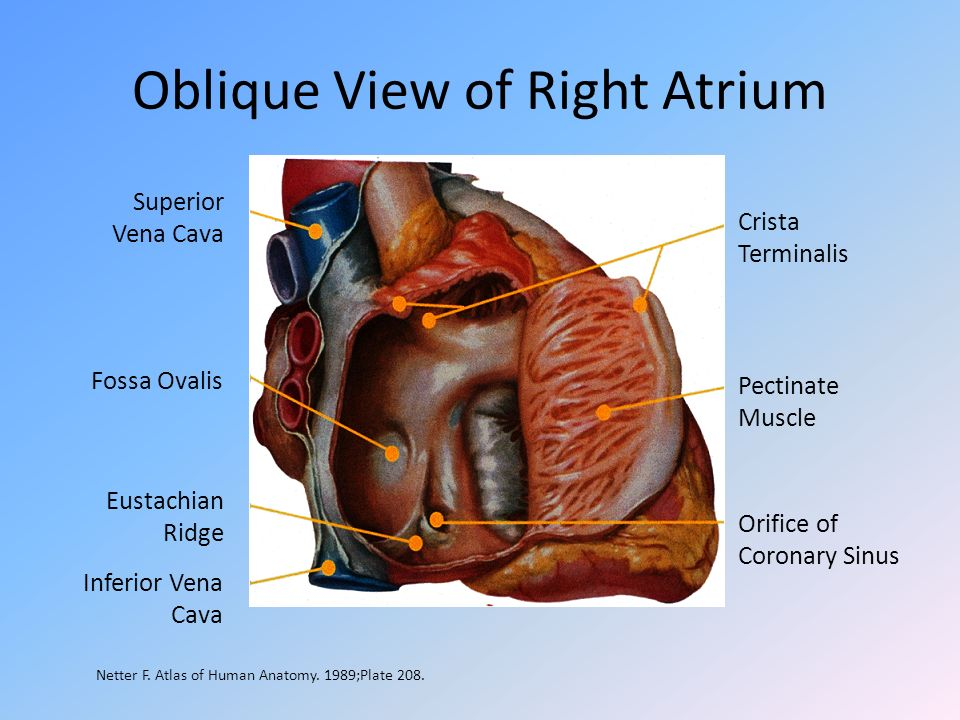 Oblique View of Right Atrium Crista Terminalis Pectinate Muscle Orifice of Coronary Sinus Superior Vena Cava Fossa Ovalis Eustachian Ridge Inferior Ve