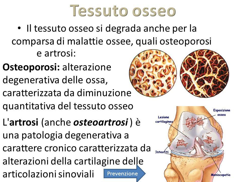 Il tessuto osseo si degrada anche per la comparsa di malattie ossee, quali osteoporosi L'artrosi (anche osteoartrosi ) è una patologia degenerativa a