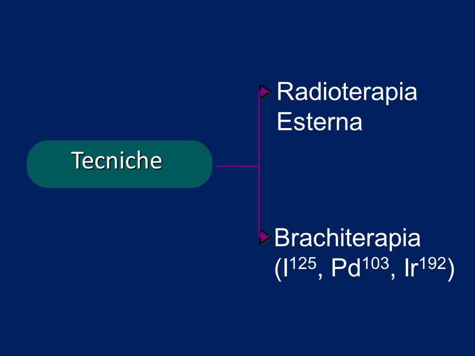Tecniche Brachiterapia (I 125, Pd 103, Ir 192 ) Radioterapia Esterna