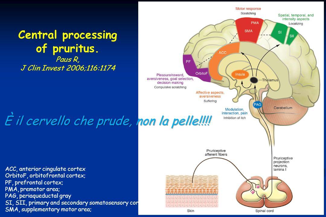 Central processing of pruritus. Paus R, J Clin Invest 2006;116:1174 ACC, anterior cingulate cortex OrbitoF, orbitofrontal cortex; PF, prefrontal corte