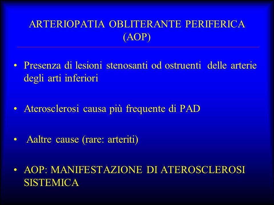ARTERIOPATIA OBLITERANTE PERIFERICA (AOP) Presenza di lesioni stenosanti od ostruenti delle arterie degli arti inferiori Aterosclerosi causa più frequ
