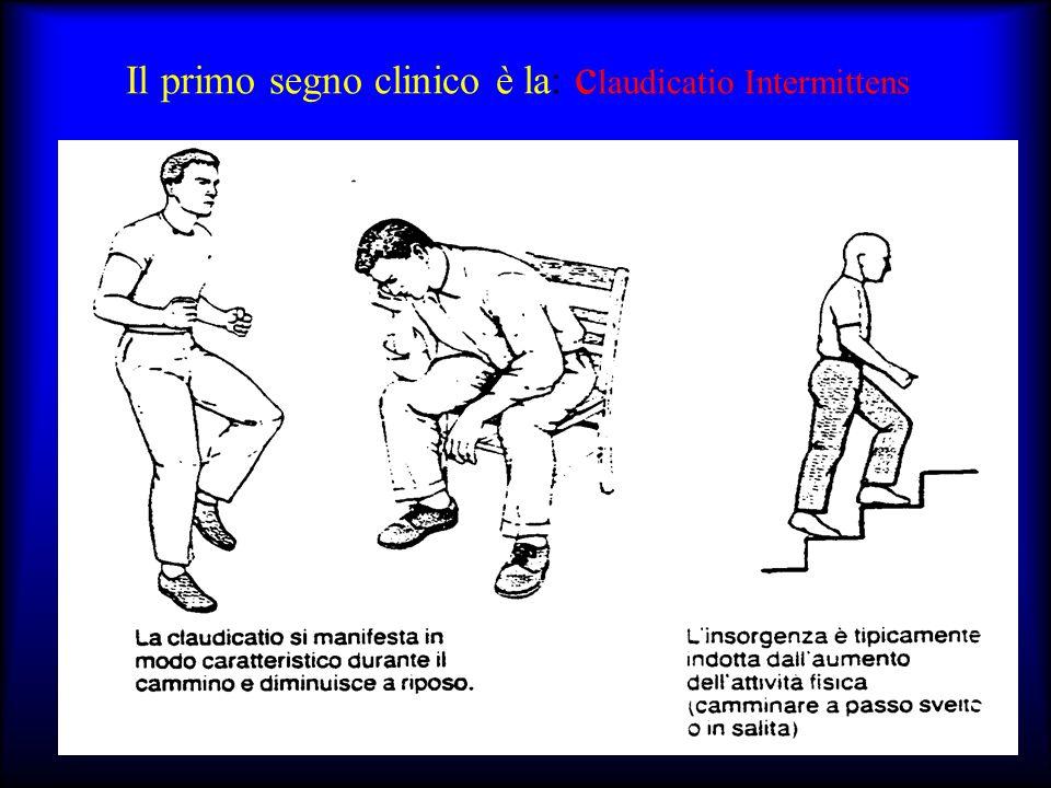 Il primo segno clinico è la: c laudicatio Intermittens Comparsa di un dolore crampiforme, ripetitivo dei muscoli dellarto inferiore gamba quando il so