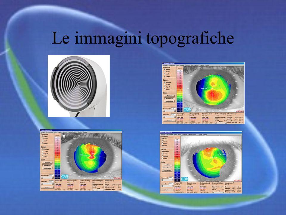 Ma perché vi sono tante lenti ? Il nostro occhio ha una sua ben precisa morfologia che va individuata con strumenti moderni e precisi, come il TOPOGRA