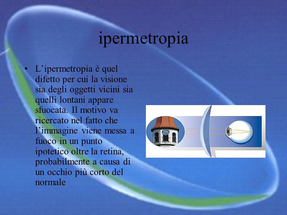 ipermetropia Lipermetropia è quel difetto per cui la visione sia degli oggetti vicini sia quelli lontani appare sfuocata.