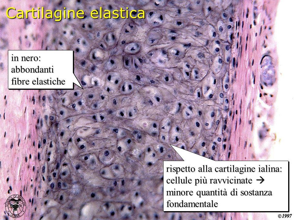 Cartilagine elastica in nero: abbondanti fibre elastiche in nero: abbondanti fibre elastiche rispetto alla cartilagine ialina: cellule più ravvicinate