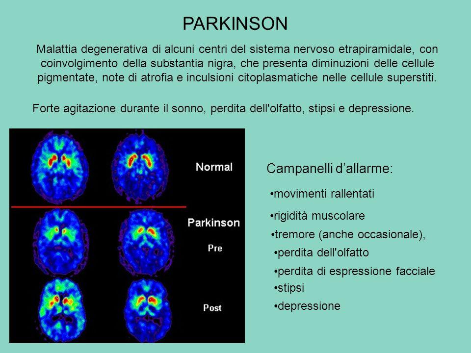 PARKINSON Malattia degenerativa di alcuni centri del sistema nervoso etrapiramidale, con coinvolgimento della substantia nigra, che presenta diminuzio