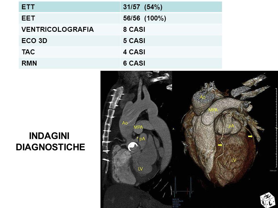 INDAGINI DIAGNOSTICHE ETT31/57 (54%) EET56/56 (100%) VENTRICOLOGRAFIA8 CASI ECO 3D5 CASI TAC4 CASI RMN6 CASI