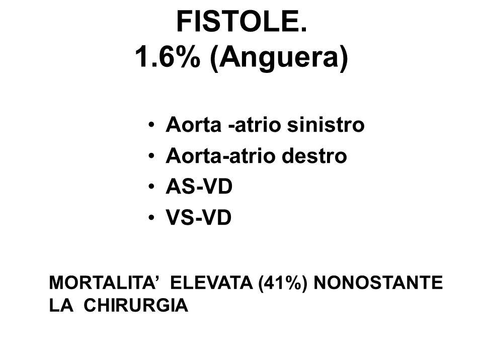 FISTOLE. 1.6% (Anguera) Aorta -atrio sinistro Aorta-atrio destro AS-VD VS-VD MORTALITA ELEVATA (41%) NONOSTANTE LA CHIRURGIA