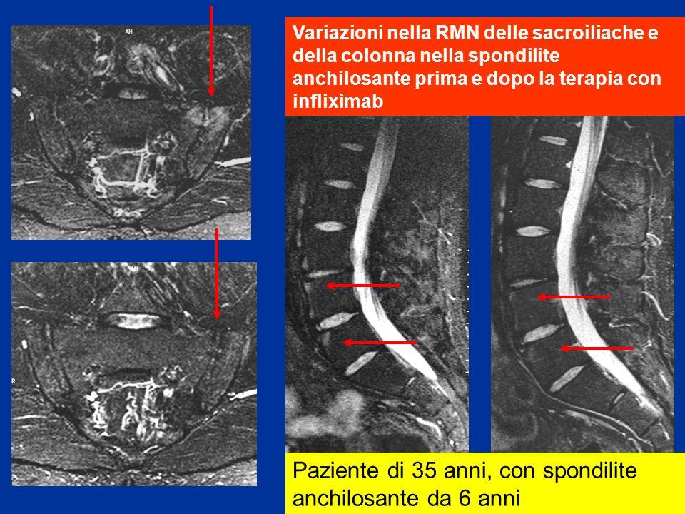 Variazioni nella RMN delle sacroiliache e della colonna nella spondilite anchilosante prima e dopo la terapia con infliximab Paziente di 35 anni, con spondilite anchilosante da 6 anni