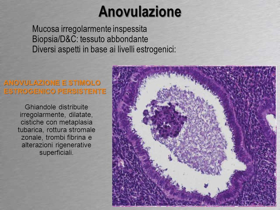 Anovulazione Mucosa irregolarmente inspessita Biopsia/D&C: tessuto abbondante Diversi aspetti in base ai livelli estrogenici: ROTTURA STROMALE SENZA PERSISTENZA FOLLICOLARE Ghiadole tubulari uniformi con diffusa rottura stromale