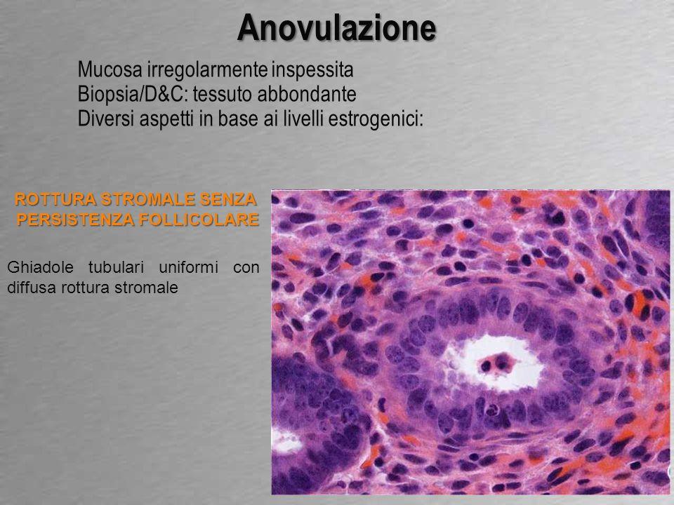 Anovulazione Mucosa irregolarmente inspessita Biopsia/D&C: tessuto abbondante Diversi aspetti in base ai livelli estrogenici: ASPETTO MISTO Aspetto misto proliferativo/secretivo