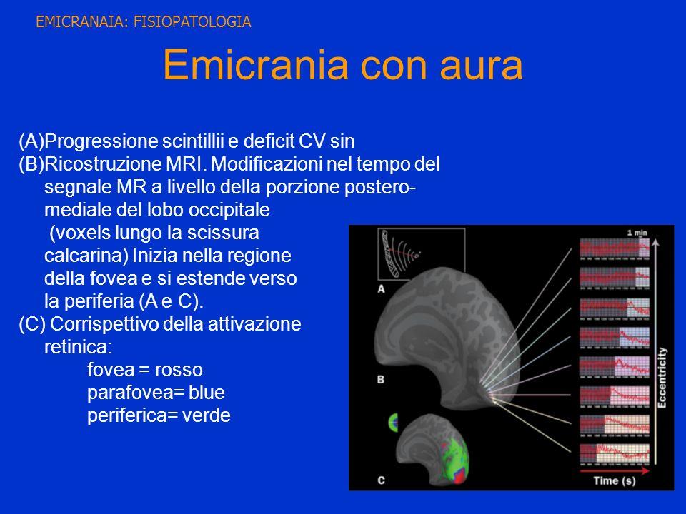 (A)Progressione scintillii e deficit CV sin (B)Ricostruzione MRI. Modificazioni nel tempo del segnale MR a livello della porzione postero- mediale del