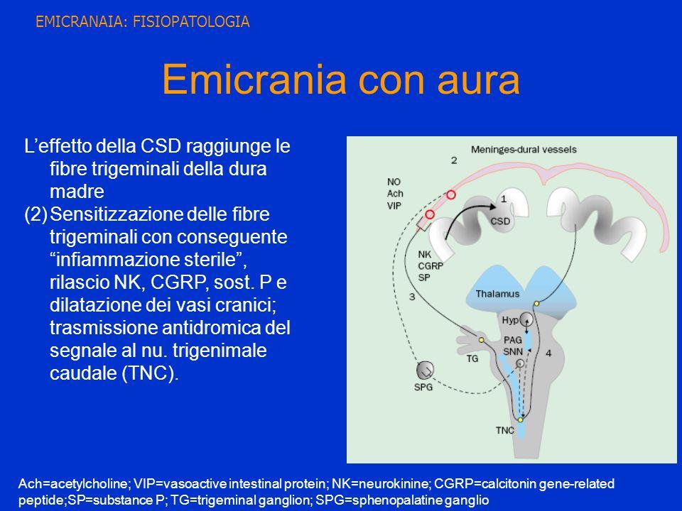 Emicrania con aura Leffetto della CSD raggiunge le fibre trigeminali della dura madre (2)Sensitizzazione delle fibre trigeminali con conseguente infia