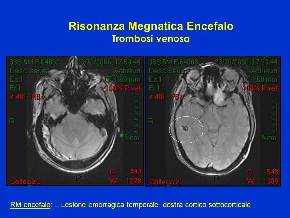 Risonanza Megnatica Encefalo Trombosi venosa RM encefalo:.. Lesione emorragica temporale destra cortico sottocorticale