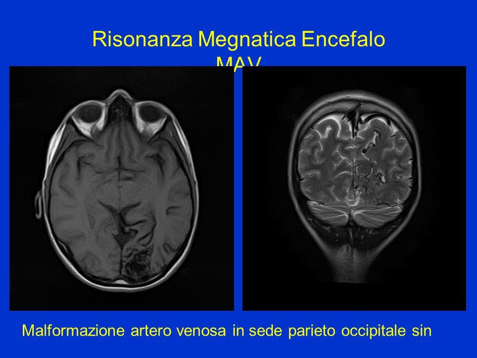 Risonanza Megnatica Encefalo MAV Malformazione artero venosa in sede parieto occipitale sin