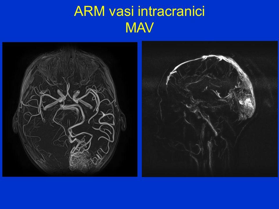 ARM vasi intracranici MAV