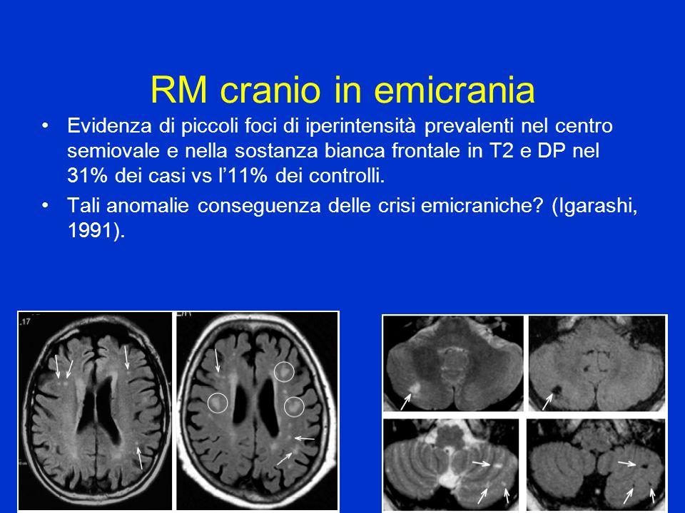 RM cranio in emicrania Evidenza di piccoli foci di iperintensità prevalenti nel centro semiovale e nella sostanza bianca frontale in T2 e DP nel 31% d