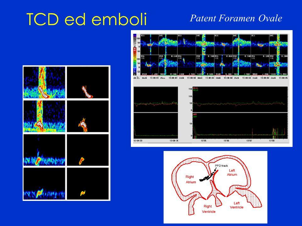 TCD ed emboli Patent Foramen Ovale