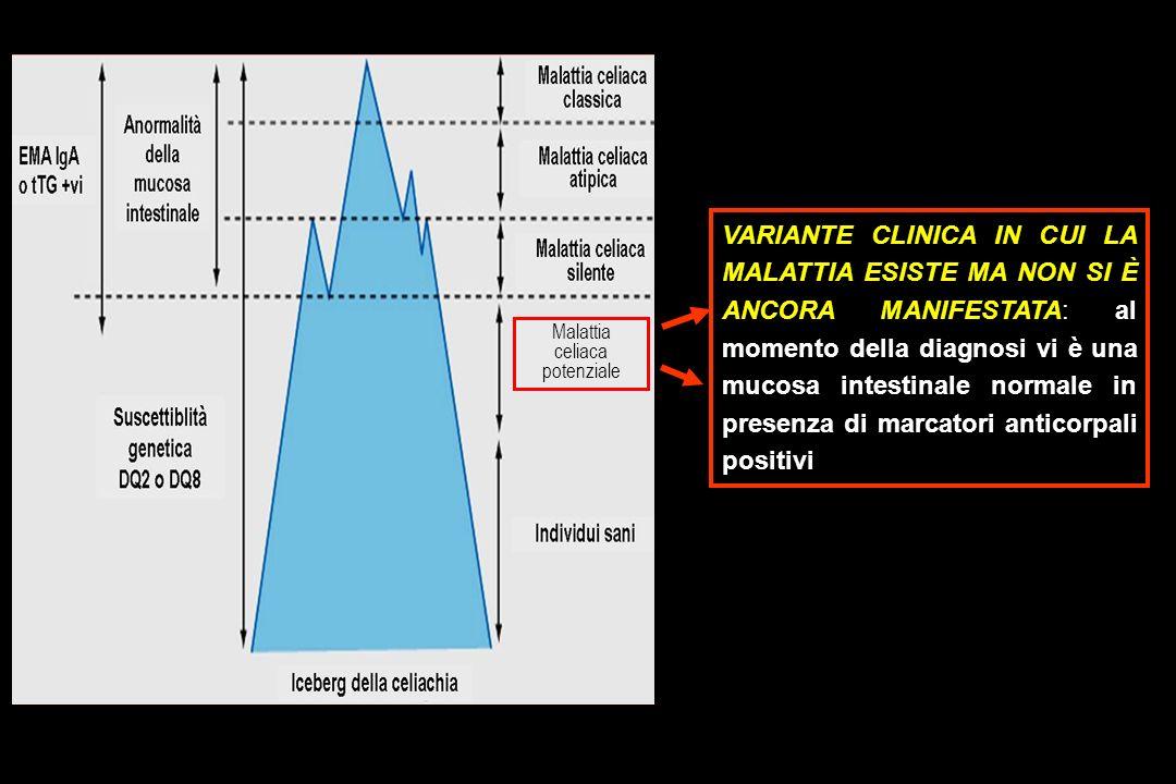 VARIANTE CLINICA IN CUI LA MALATTIA ESISTE MA NON SI È ANCORA MANIFESTATA: al momento della diagnosi vi è una mucosa intestinale normale in presenza di marcatori anticorpali positivi Malattia celiaca potenziale