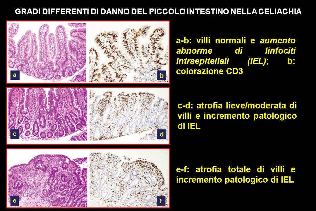 GRADI DIFFERENTI DI DANNO DEL PICCOLO INTESTINO NELLA CELIACHIA a-b: villi normali e aumento abnorme di linfociti intraepiteliali (IEL); b: colorazione CD3 c-d: atrofia lieve/moderata di villi e incremento patologico di IEL e-f: atrofia totale di villi e incremento patologico di IEL
