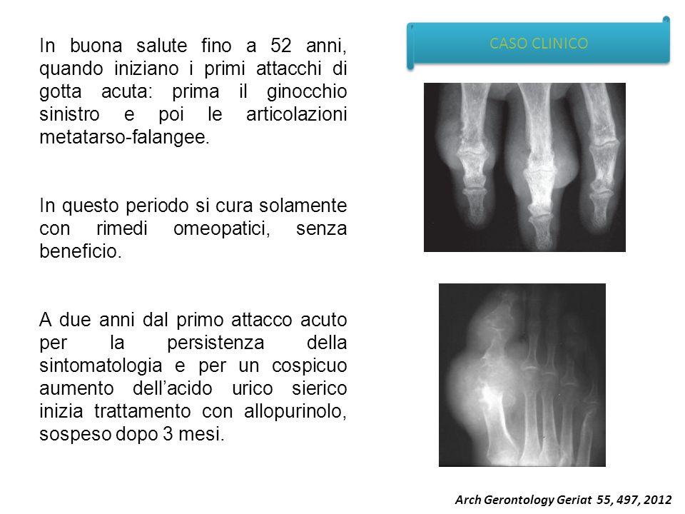 CASO CLINICO In buona salute fino a 52 anni, quando iniziano i primi attacchi di gotta acuta: prima il ginocchio sinistro e poi le articolazioni metat