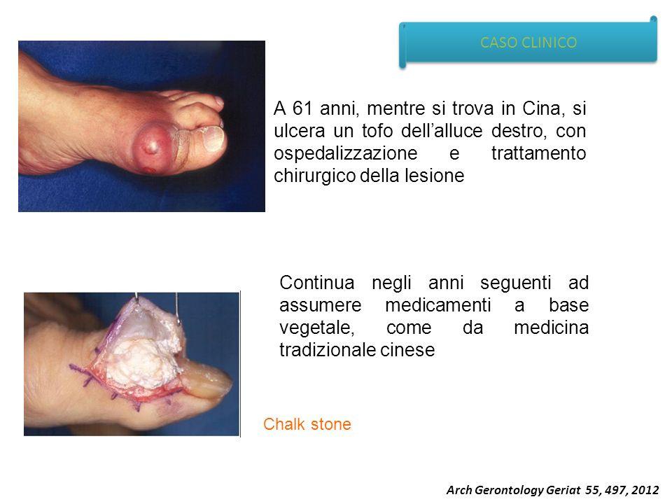 CASO CLINICO A 61 anni, mentre si trova in Cina, si ulcera un tofo dellalluce destro, con ospedalizzazione e trattamento chirurgico della lesione Cont