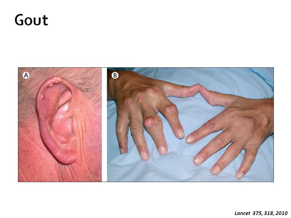 Lancet 375, 318, 2010