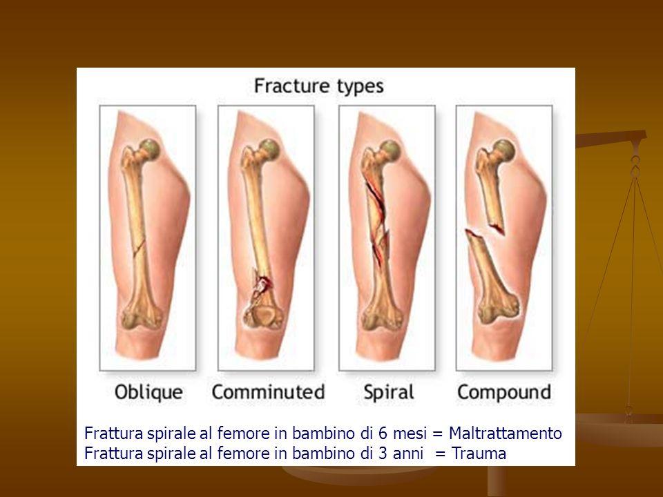 Frattura spirale al femore in bambino di 6 mesi = Maltrattamento Frattura spirale al femore in bambino di 3 anni = Trauma
