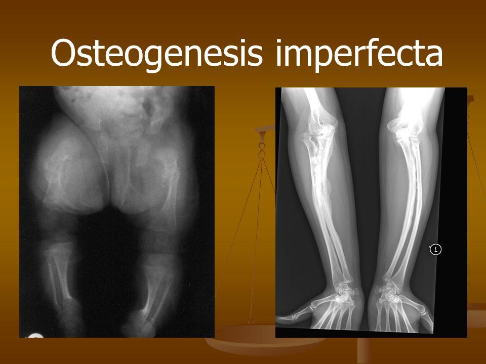 Osteogenesis imperfecta