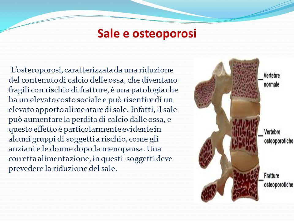 Sale e osteoporosi Losteroporosi, caratterizzata da una riduzione del contenuto di calcio delle ossa, che diventano fragili con rischio di fratture, è