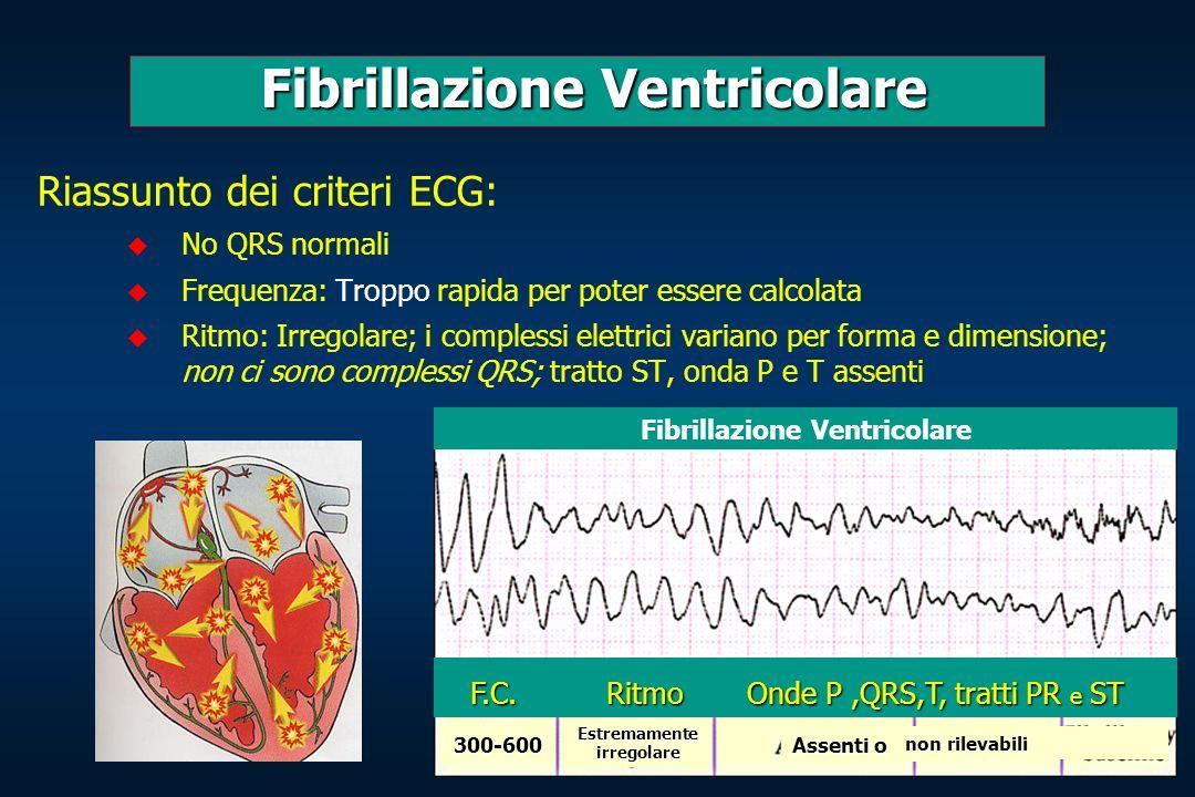 Fibrillazione Ventricolare Fibrillazione Ventricolare Riassunto dei criteri ECG: No QRS normali Frequenza: Troppo rapida per poter essere calcolata Ri