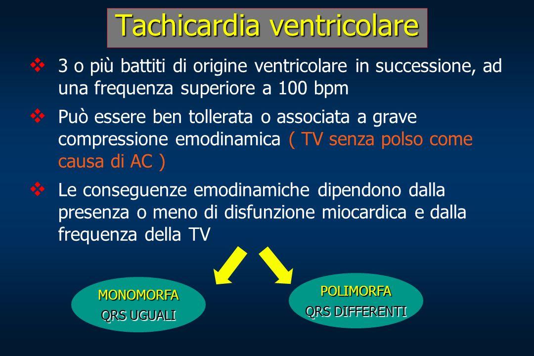 Tachicardiaventricolare Tachicardia ventricolare 3 o più battiti di origine ventricolare in successione, ad una frequenza superiore a 100 bpm Può esse