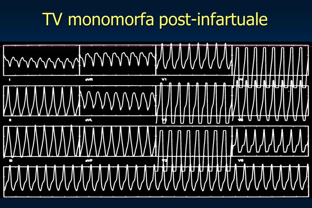 TV monomorfa post-infartuale