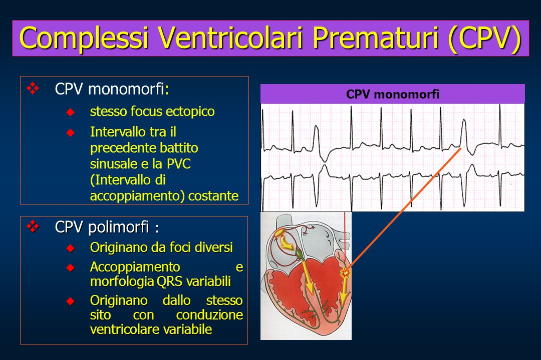 CPV monomorfi: stesso focus ectopico Intervallo tra il precedente battito sinusale e la PVC (Intervallo di accoppiamento) costante CPV polimorfi : CPV