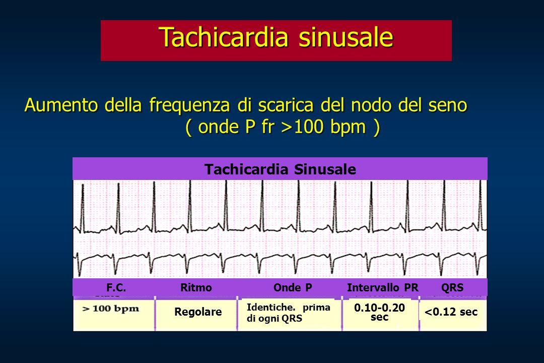 Tachicardia sinusale Aumento della frequenza di scarica del nodo del seno Aumento della frequenza di scarica del nodo del seno ( onde P fr >100 bpm )