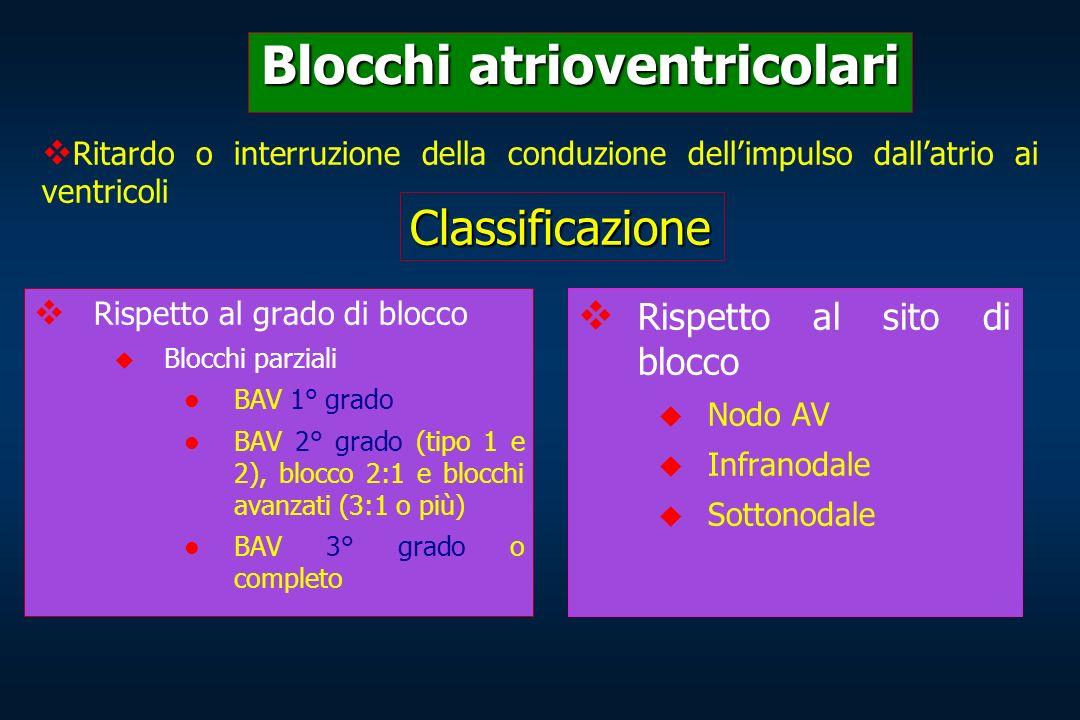Blocchi atrioventricolari Rispetto al grado di blocco Blocchi parziali BAV 1° grado BAV 2° grado (tipo 1 e 2), blocco 2:1 e blocchi avanzati (3:1 o pi