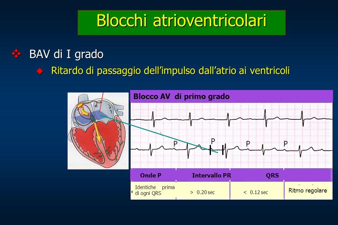 BAV di I grado BAV di I grado Ritardo di passaggio dellimpulso dallatrio ai ventricoli Ritardo di passaggio dellimpulso dallatrio ai ventricoli Blocch