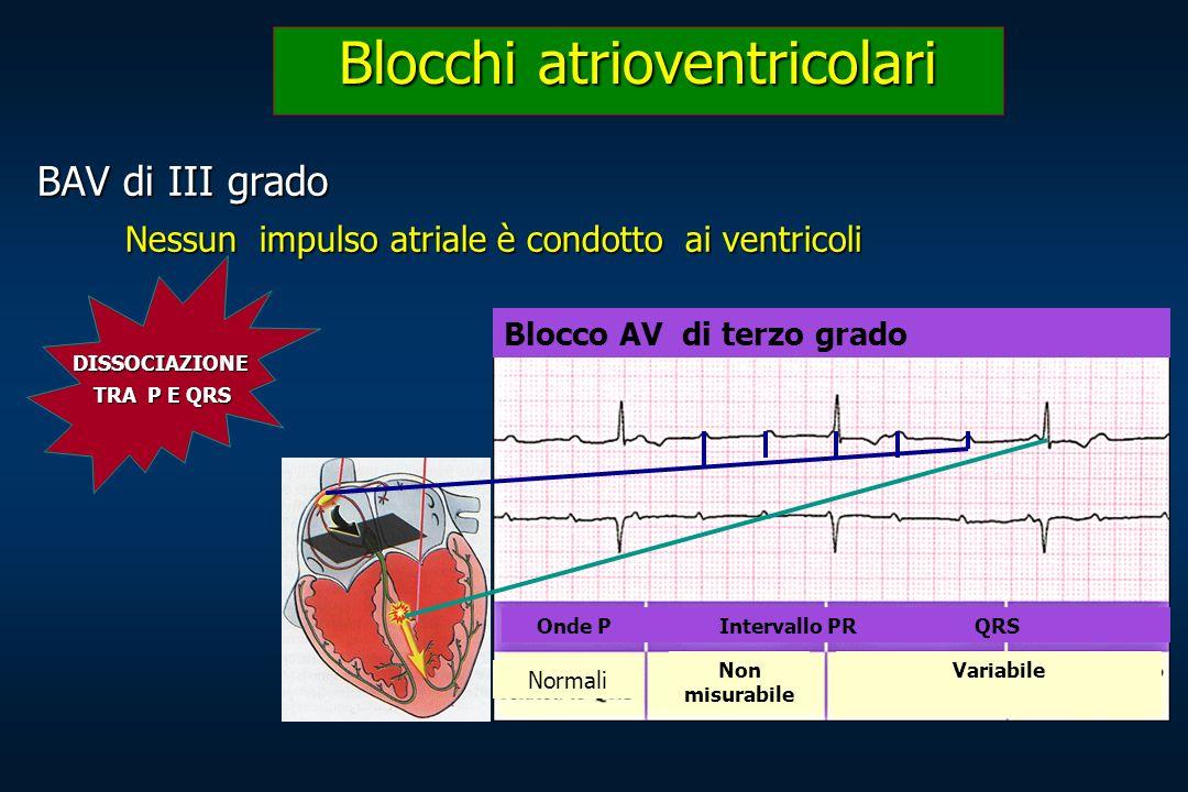 BAV di III grado Nessun impulso atriale è condotto ai ventricoli Blocchi atrioventricolari Blocco AV di terzo grado Onde P Intervallo PR QRS Normali N