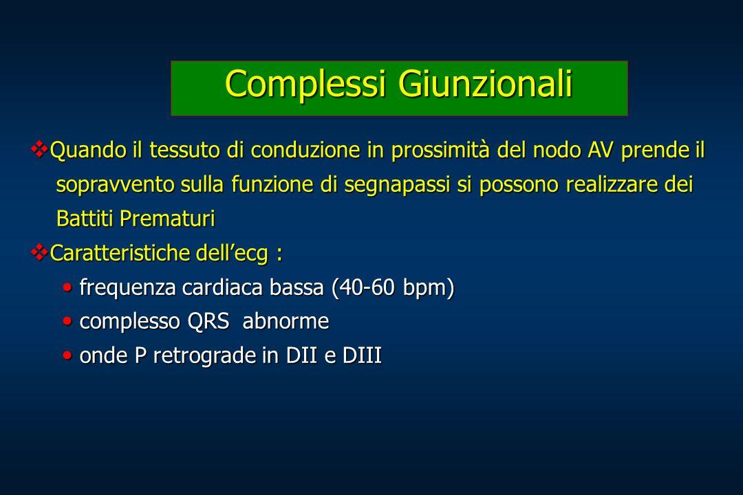 Complessi Giunzionali Quando il tessuto di conduzione in prossimità del nodo AV prende il Quando il tessuto di conduzione in prossimità del nodo AV pr
