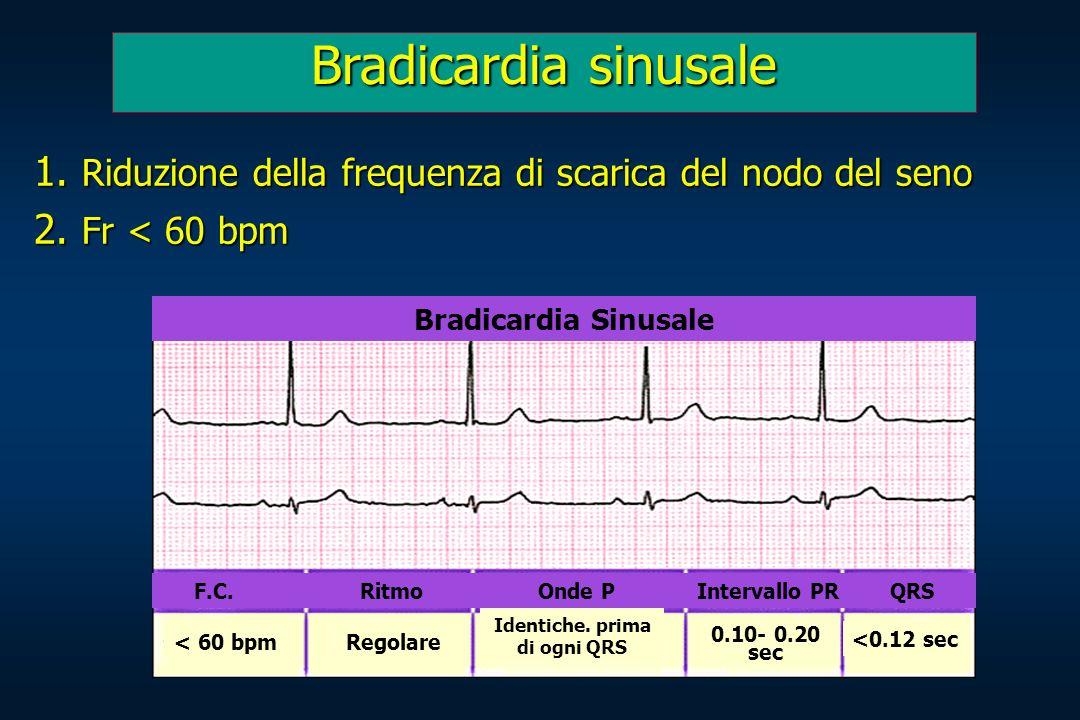 Bradicardia sinusale 1. Riduzione della frequenza di scarica del nodo del seno 2. Fr < 60 bpm Bradicardia Sinusale F.C. Ritmo Onde P Intervallo PR QRS