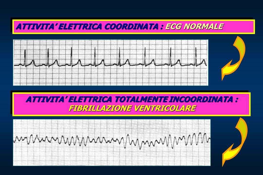 ATTIVITA ELETTRICA COORDINATA : ECG NORMALE ATTIVITA ELETTRICA TOTALMENTE INCOORDINATA : FIBRILLAZIONE VENTRICOLARE
