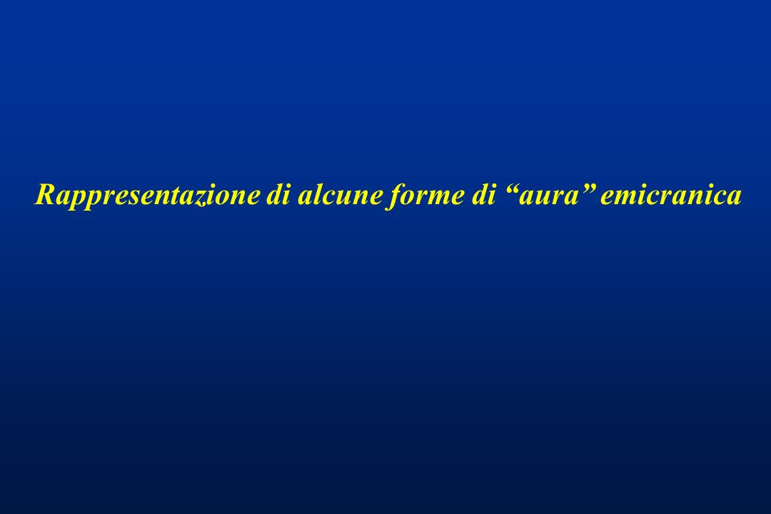 Rappresentazione di alcune forme di aura emicranica