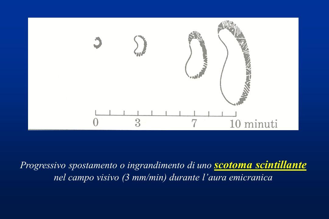 Progressivo spostamento o ingrandimento di uno scotoma scintillante nel campo visivo (3 mm/min) durante laura emicranica