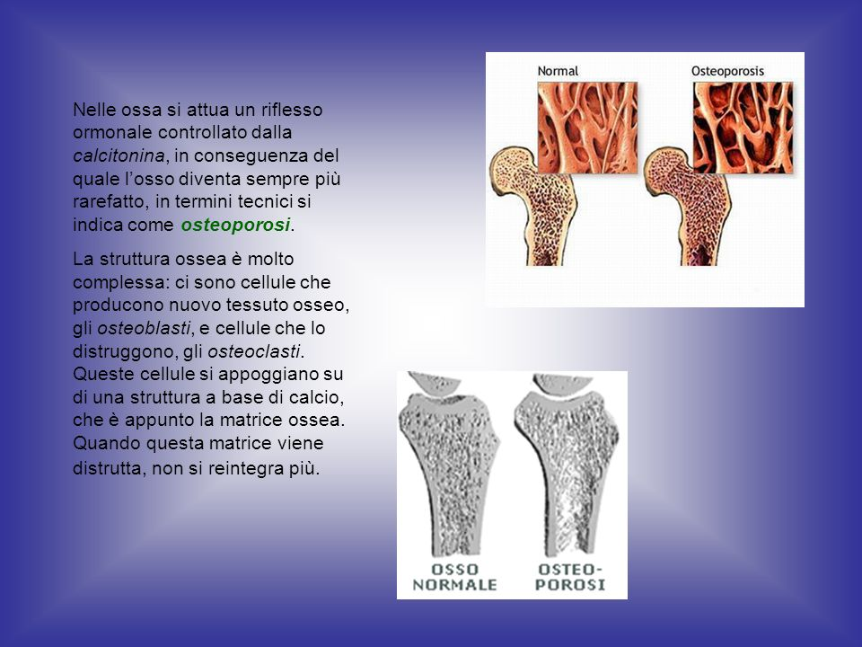 Nelle ossa si attua un riflesso ormonale controllato dalla calcitonina, in conseguenza del quale losso diventa sempre più rarefatto, in termini tecnic