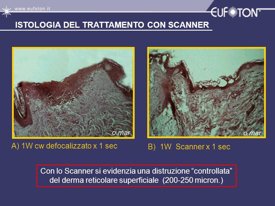 A) 1W cw defocalizzato x 1 sec B) 1W Scanner x 1 sec Con lo Scanner si evidenzia una distruzione controllata del derma reticolare superficiale (200-25