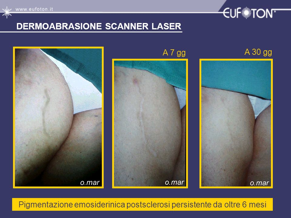 Pigmentazione emosiderinica postsclerosi persistente da oltre 6 mesi A 7 gg A 30 gg DERMOABRASIONE SCANNER LASER